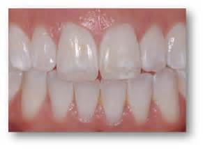 calcium teeth white picture 5