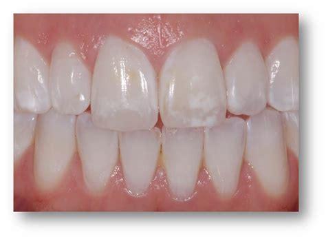 calcium loss in teeth picture 9