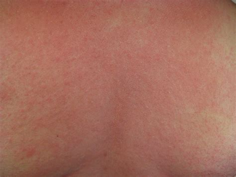 allergic reaction skin rashes picture 7