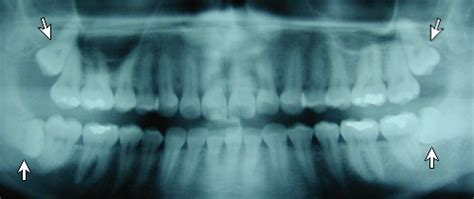 masakit ang wisdom tooth pain picture 2