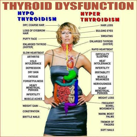 dr for thyroid disease picture 13