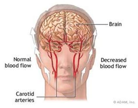 what causes decreased blood supply to fetus picture 6