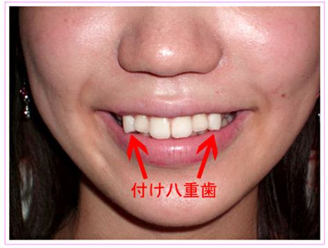 vampire teeth caps picture 6