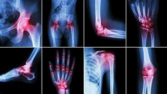 arthritis pain picture 6