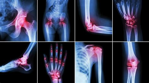arthritis aches picture 1