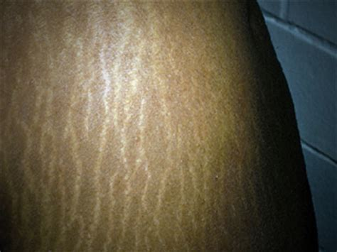 black stretch marks picture 2