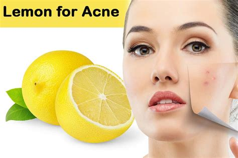 how to fix acne picture 13