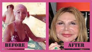 miami for aging and reconstructive surgery picture 11