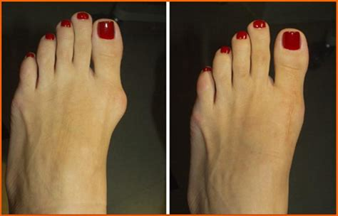 are you put to sleep for bunion surgery picture 4