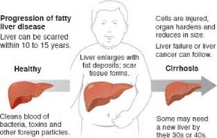 fatty liver symptoms picture 13