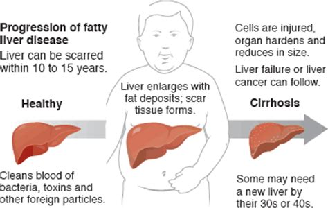 fatty deposits on the liver picture 18