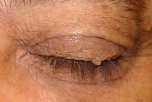 eye skin growth picture 2