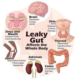 irritable bowel diet picture 2