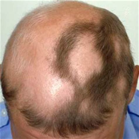 vicodin hair loss picture 6
