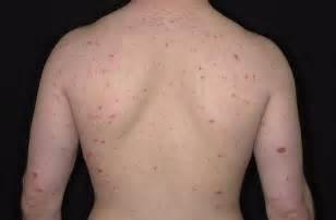 eczema skin condition picture 17
