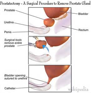 Removal of the prostate gland picture 13