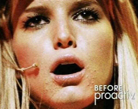 australian dream acne picture 3