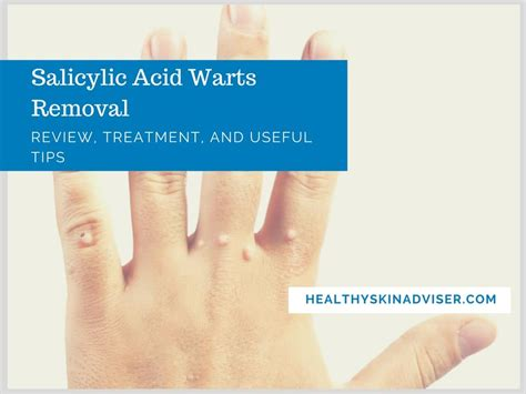 treatment of warts with squaric acid picture 5