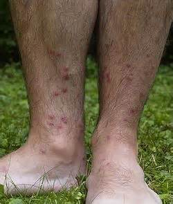 brown spots like freckles and itchy scaly skin picture 15