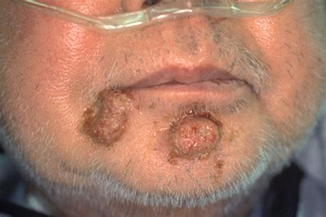 folliculitis on lips picture 1