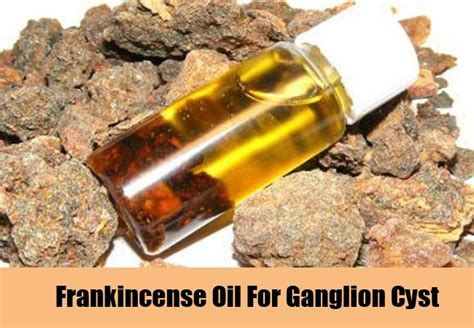 frankincense oil for ganglion cysts picture 1