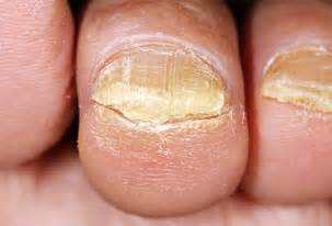 what causes nail fungus picture 11