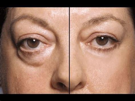 aging technique picture 7