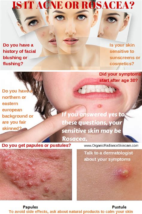 acne rosacea red frace treatment picture 10