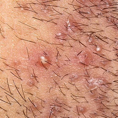 foliculitis bacterial picture 5