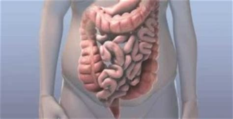 irregular bowel movements causes picture 6