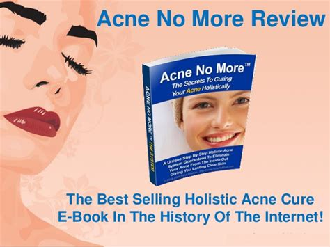 chrysalyx reviews for acne scars picture 1