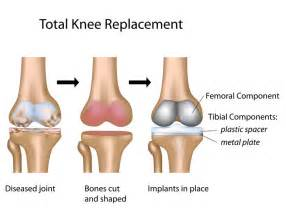 knee joint replacement success rates picture 1