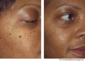 skin removal picture 18