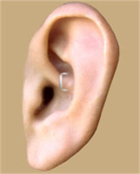 weight loss ear staple picture 17