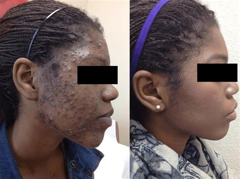 Acne scarring treatment picture 7