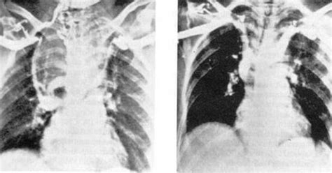 diseases for thyroid in cava in fiji picture 12