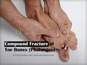 metatarsal phalangeal joint injury picture 18