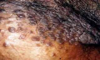 do genital warts cause discharge picture 7