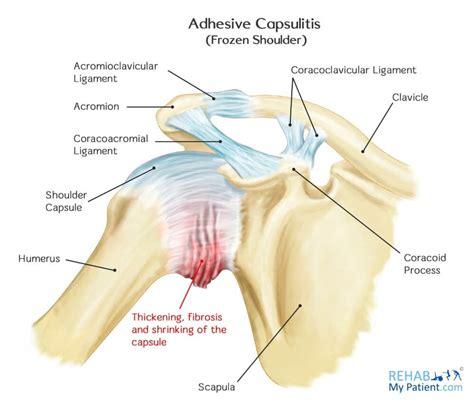 stiff shoulder joint picture 6