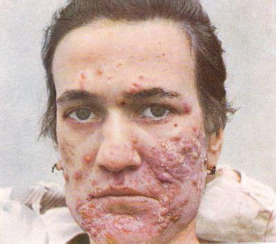 antibotics for acne picture 1
