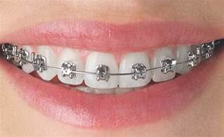 all cinds of teeth grizs gold and silver picture 2