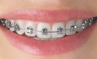 all cinds of teeth grizs gold and silver picture 1