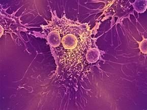 antibiotic treat bladder cancer picture 13