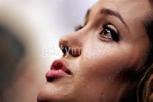 angelina jolie acne picture 2