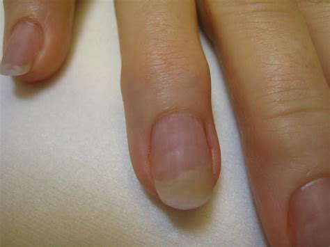 artificial nail fungus picture 9