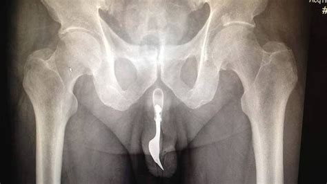 insert straw in penis picture 9