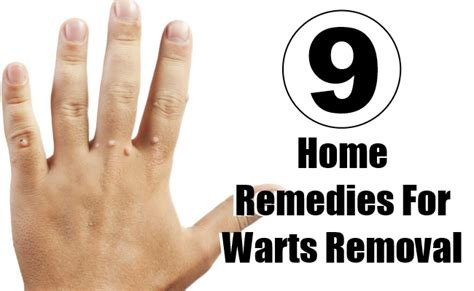 natural remedy for wart removal on lip picture 2
