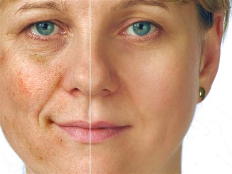 ageing skin picture 14