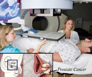 Advanced treatment for prostate cancer picture 11