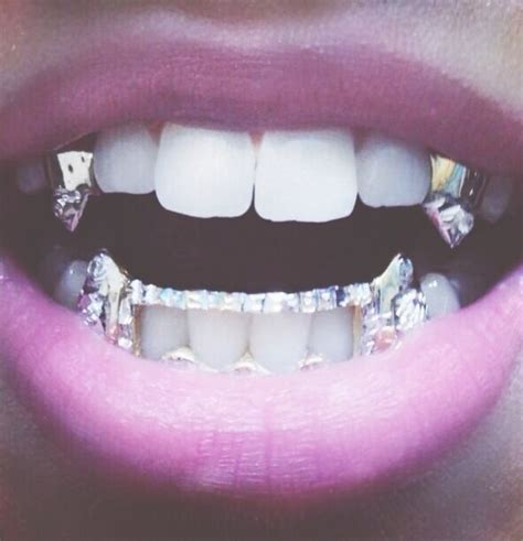 teeth grills picture 6